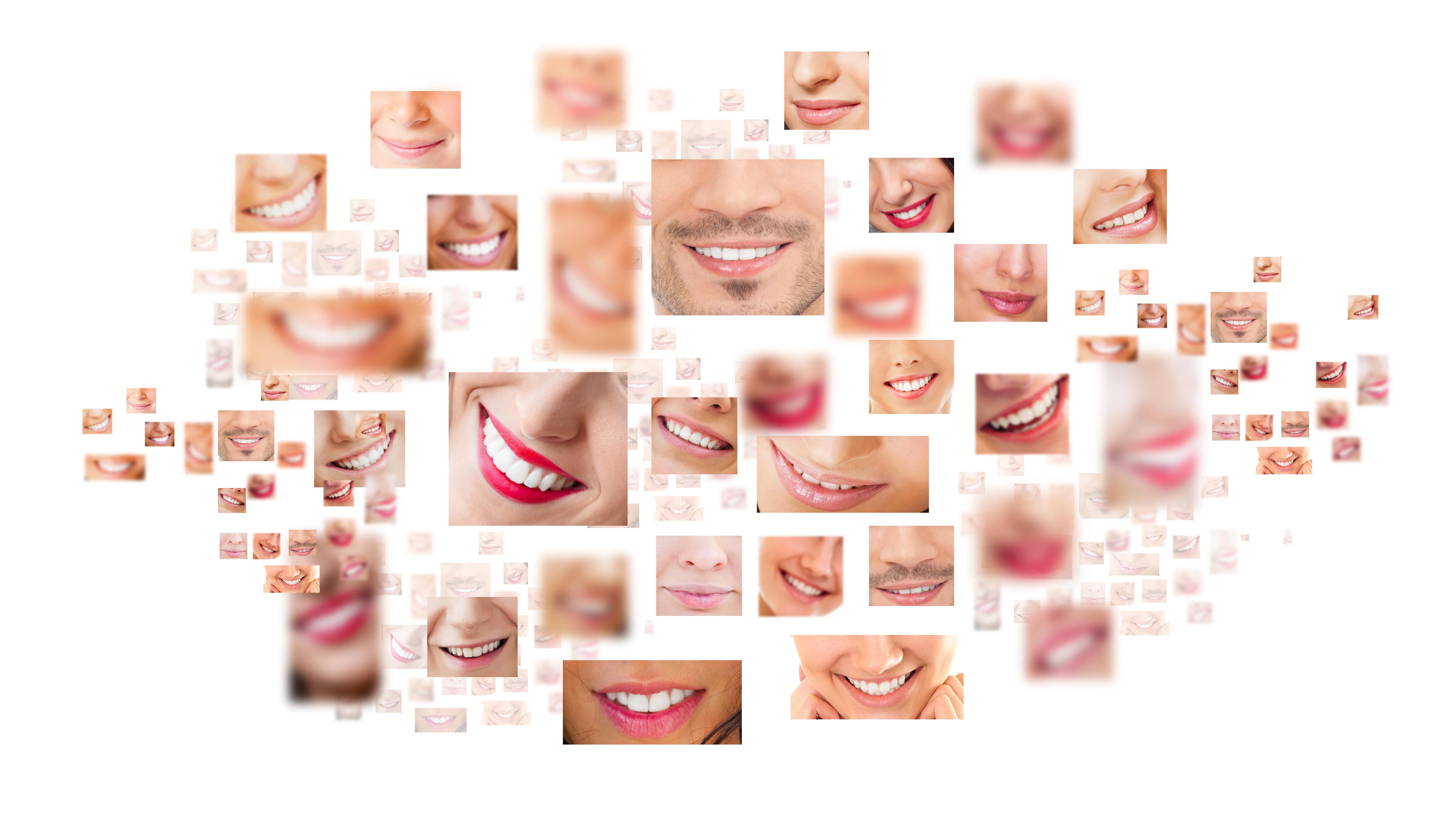 Aesthetic Analysis at Roca Santiago Dental Clinic in Fuengirola