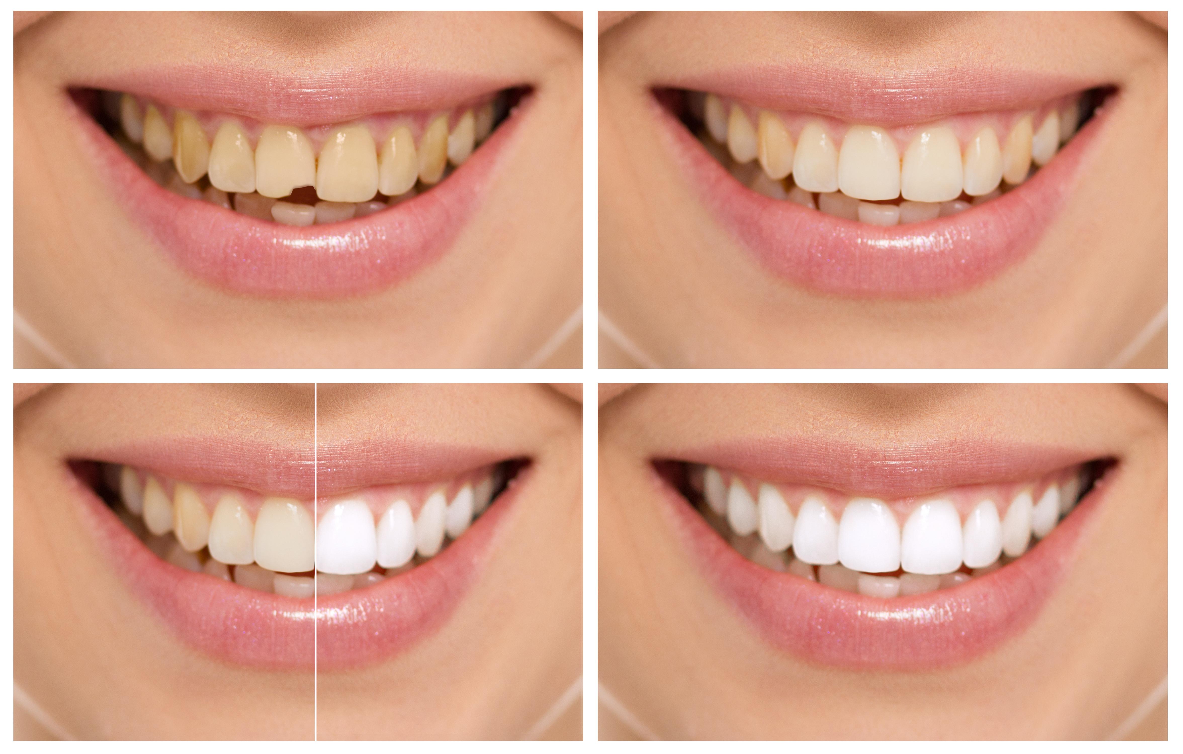 Blanqueamiento dental en clínica Dental Roca Santiago Fuengirola - Málaga