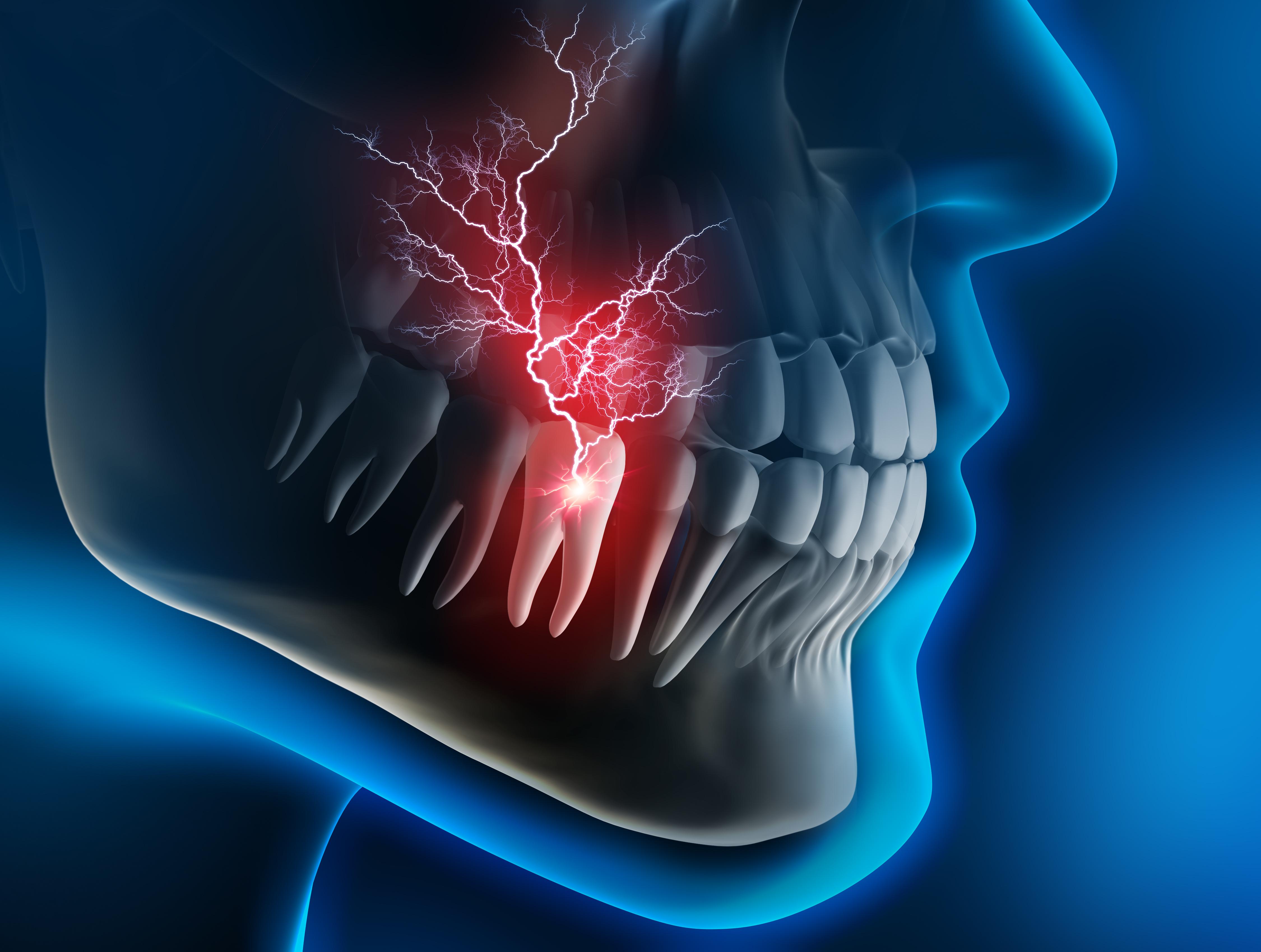 endodoncia en Clínica Dental Roca Santiago Fuengirola - Málaga