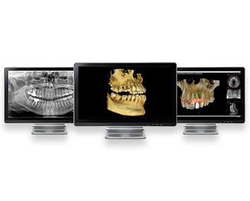 Escáner intraoral en Clínica Dental Roca Santiago en Fuengirola- Málaga