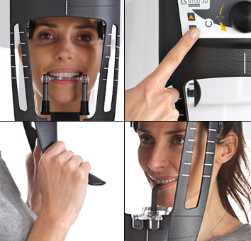 Escáner 3D CBCT en Clínica Dental Roca Santiago - Fuengirola - Málaga
