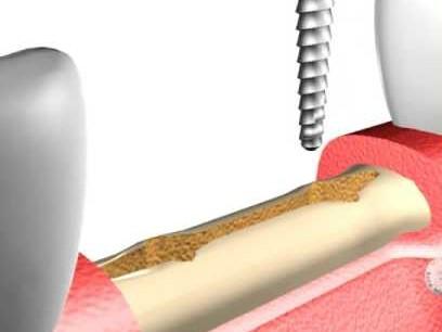 Expansión de cresta en Clínica Dental Roca Santiago