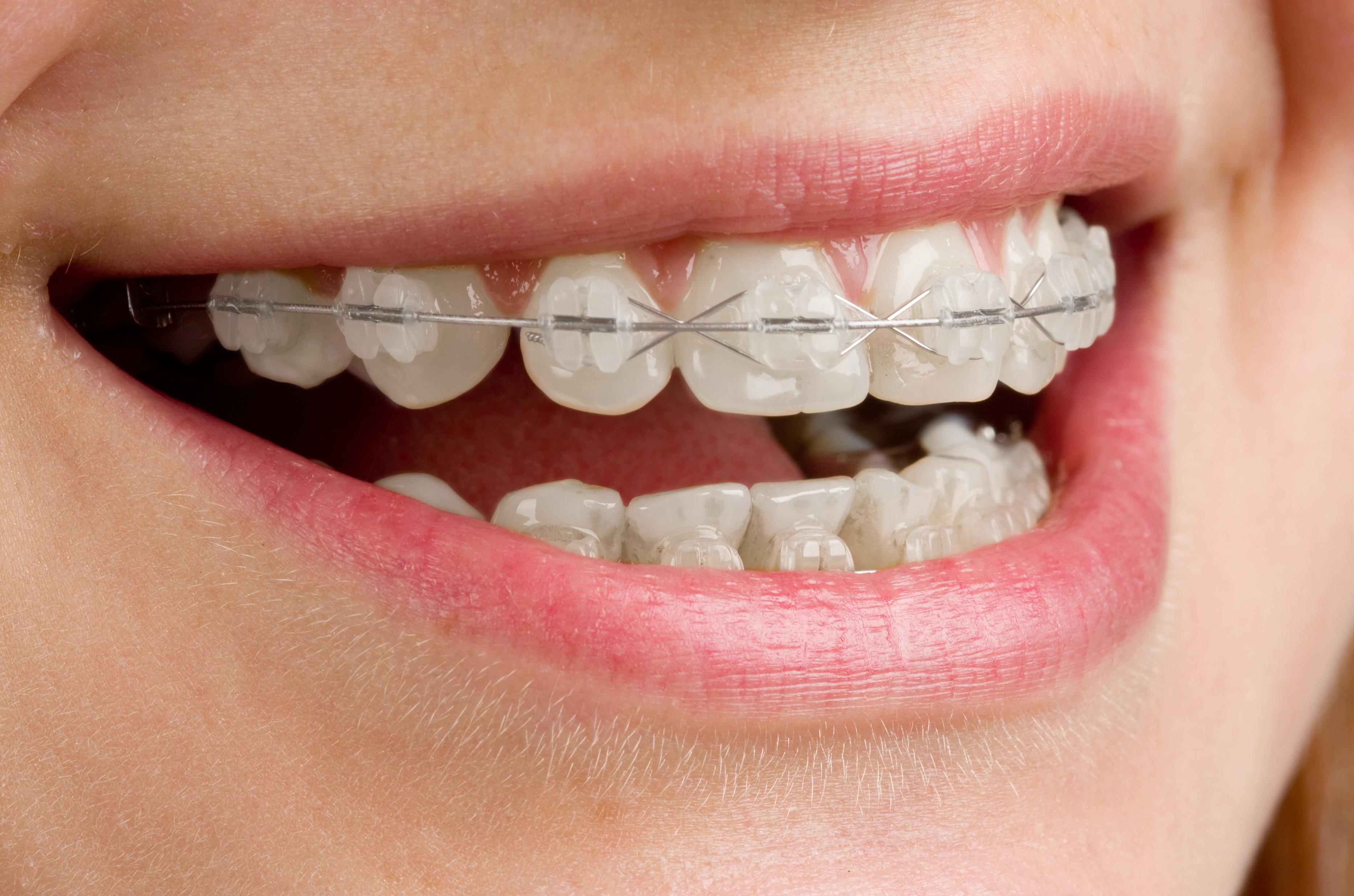 ortodoncia brackets estéticos en Clínica Dental Roca Santiago en Fuengirola, Málaga