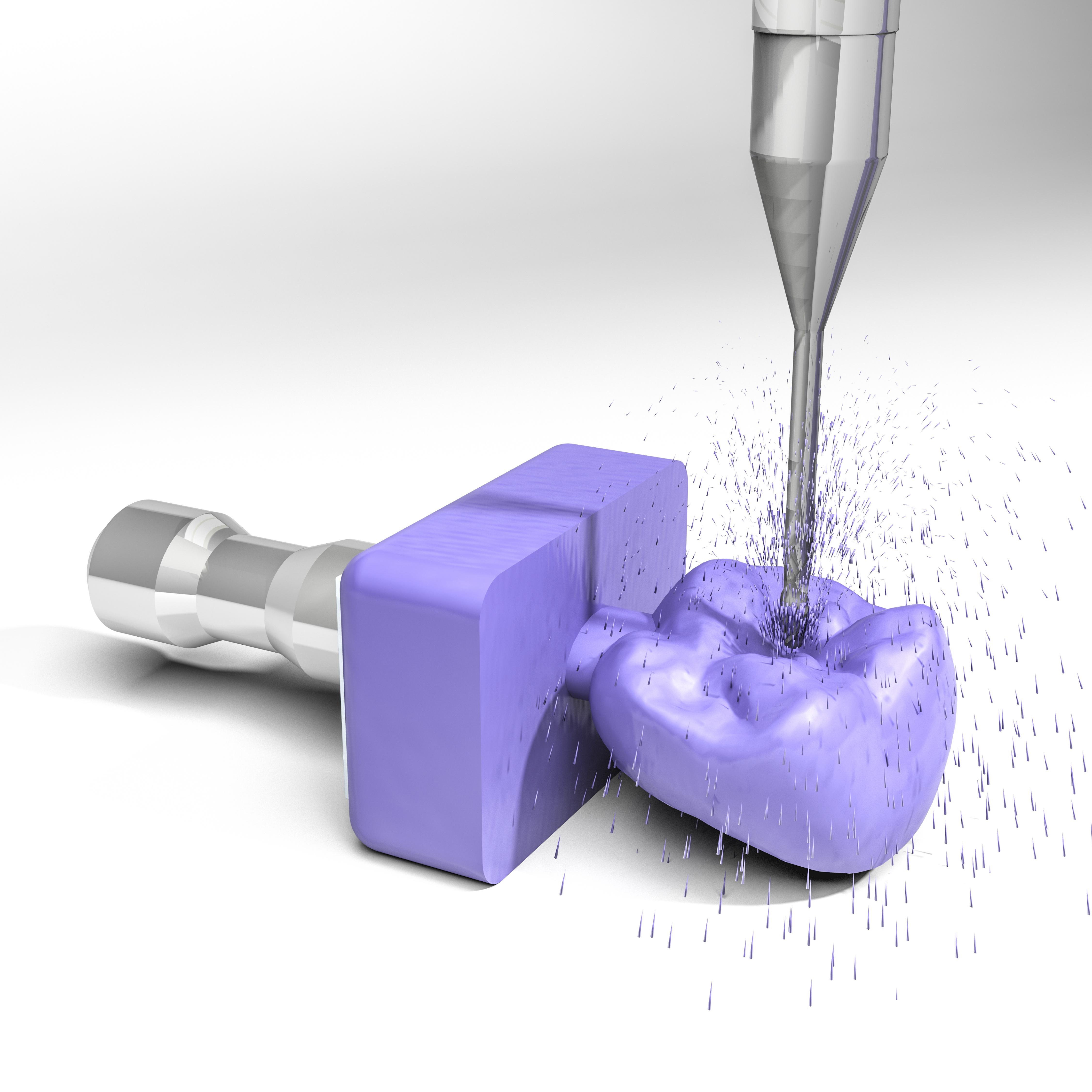 Prótesis sobre implante en Clínica Dental Roca Santiago - Fuengirola