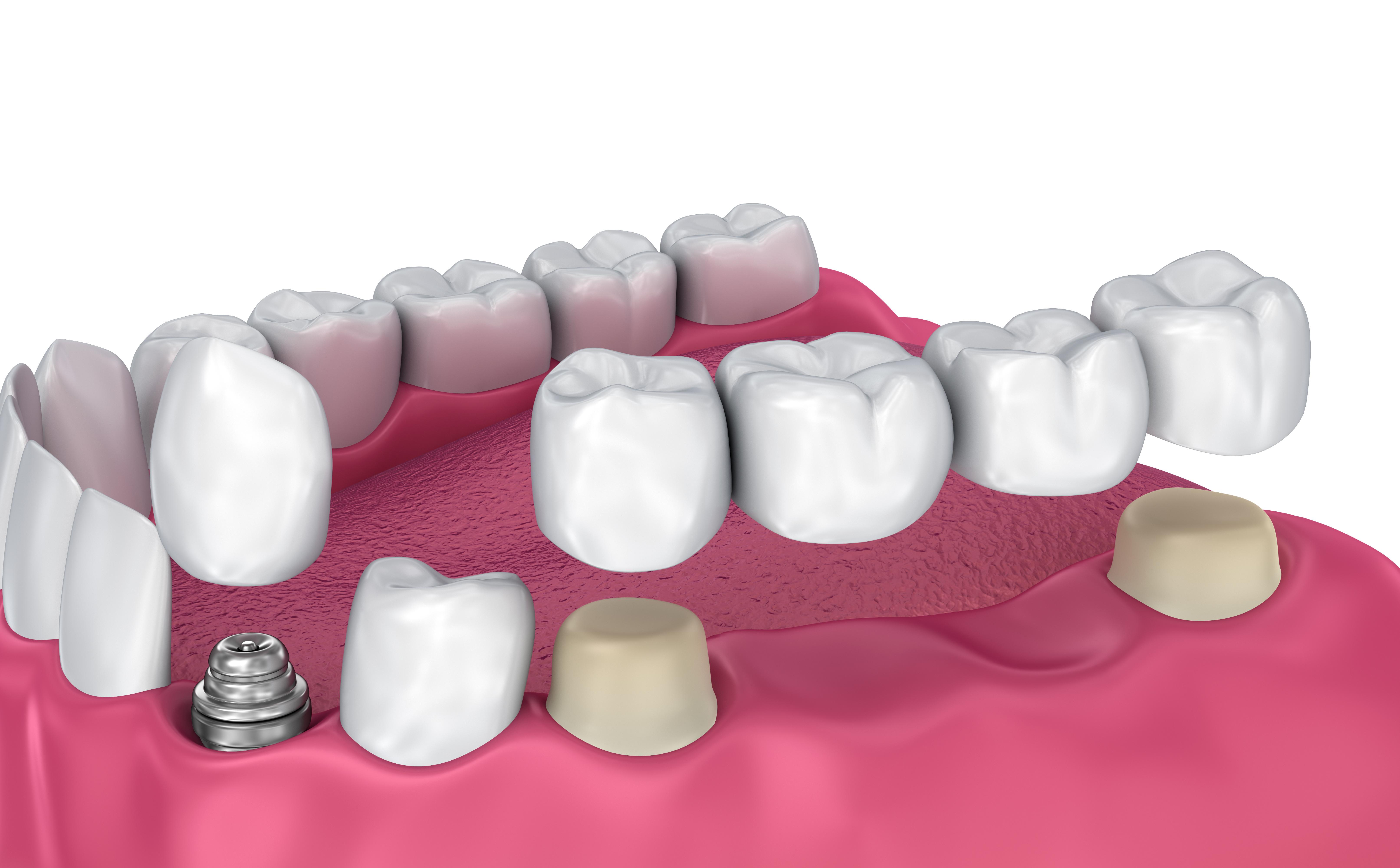 prótesis dental en Clínica Dental Roca Santiago - Fuengirola - Málaga