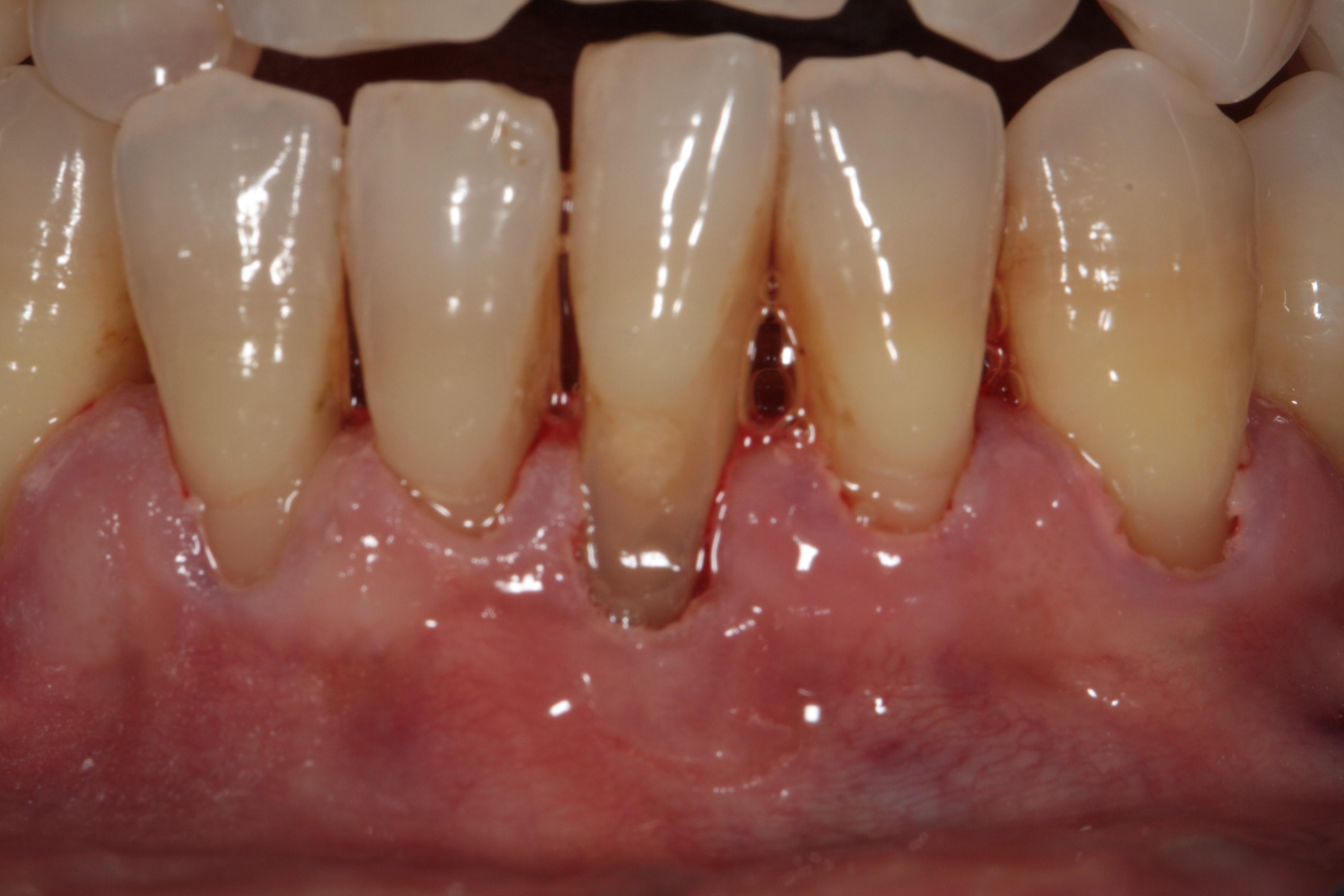 Cirugía Mucogingival en Clínica Dental Roca Santiago - Fuengirola