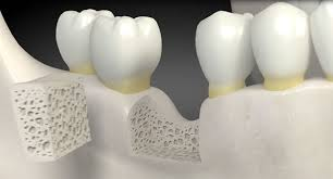 Guided Bone Regeneration (GBR) - Clínica Dental Roca Santiago