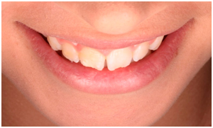 Dental Veneers - Clínica Dental Roca Santiago Fuengirola