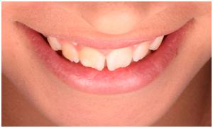 Carillas Dentales- Clínica Dental Roca Santiago Fuengirola