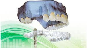 Cirugía implantológica guiada- Clínica Dental Roca Santiago - Fuengirola